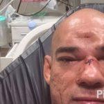 Cyborg garantiu estar recuperado após sofrer lesão impressionante. Foto: Reprodução
