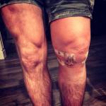 Bisping posta foto de perna inchada (FOTO: Reprodução)