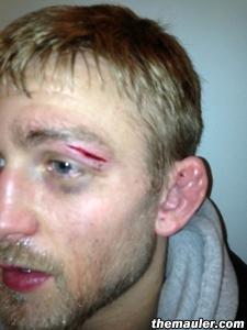 Alexander Gustafsson exibe o corte que lhe impediu de lutar no UFC Suécia. Foto: MMA Junkie/Reprodução