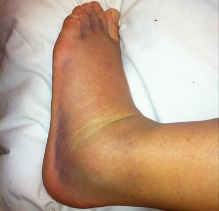 Apesar da imagem sugerir o contrário, Ross Pearson afirma que não fraturou o pé. Foto: Twitter/Reprodução