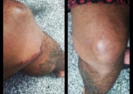 Imagem do joelho esquerdo publicada por Wolverine. Foto: Reprodução/Instagram