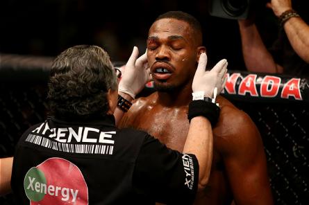 """J. Jones recebe tratamento do """"cutman"""" do UFC. Foto: Josh Hedges/UFC"""