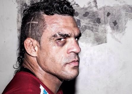 V. Belfort com o olho direito roxo em clique do fotógrafo Ray Longo. Foto: Instagram/Reprodução