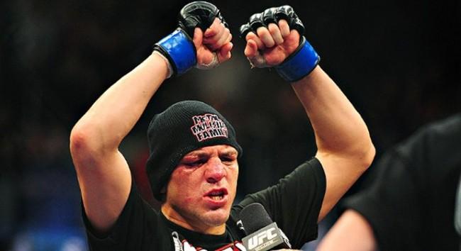 Nick se envolveu em briga em boate nos EUA. Foto: Divulgação/UFC
