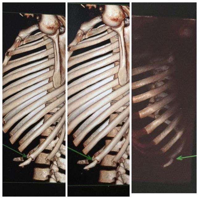 Raixo-X da costela de Aldo mostra local da lesão. Foto: Divulgação