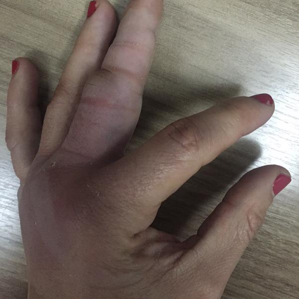 Mão de Claudinha ficou bastante machucada após a luta. Foto: Reprodução