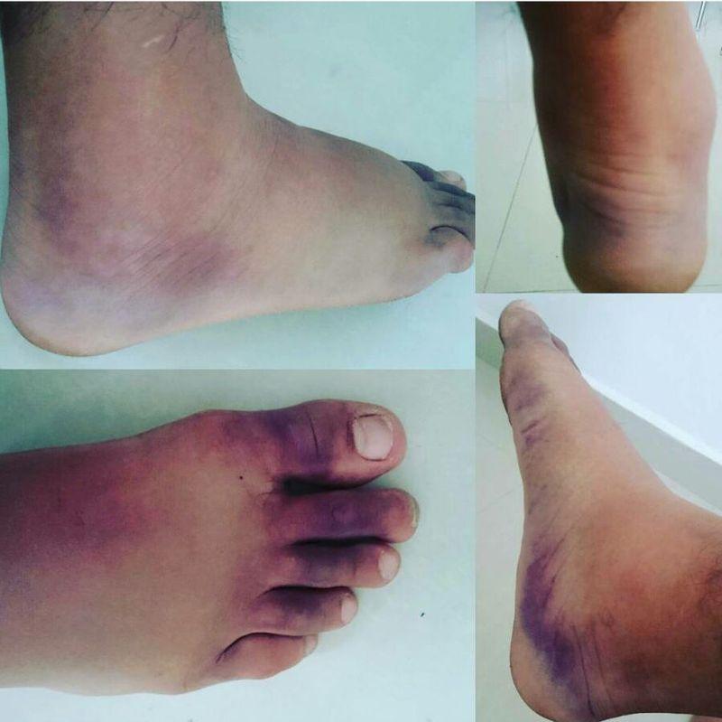 pés inchando depois do trabalho