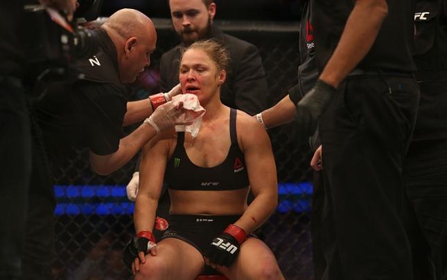 Ronda (foto) sofreu grave corte no lábio inferior. Foto: Pat Sacala/UFC