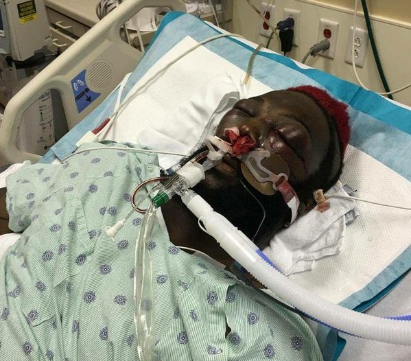 Dada 5000 sofreu infarto no Bellator e ficou internado por semanas. Foto: Reprodução