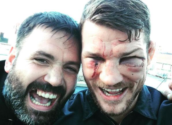Bisping ficou com o rosto machucado após o UFC 204. Foto: Reprodução/Instagram