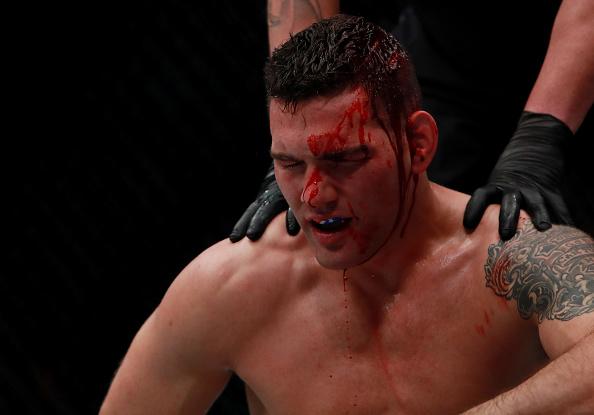 Weidman foi brutalmente nocauteado por Y.Romero no UFC 205. (Foto: Getty Images)