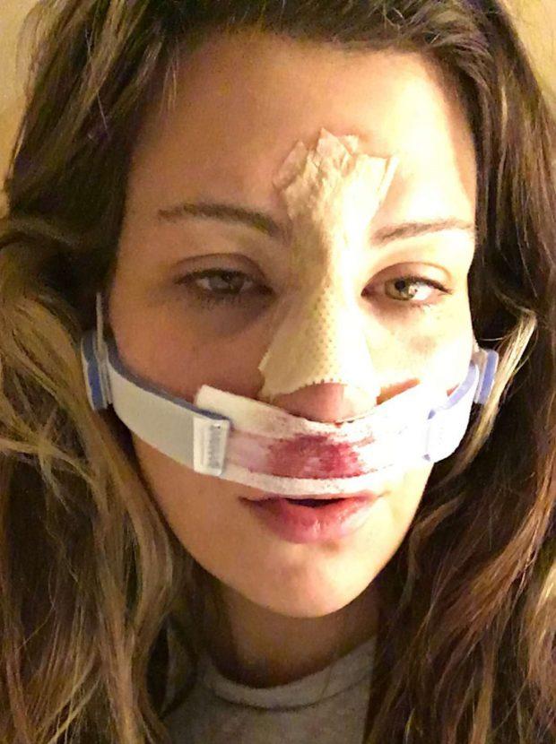 Tate sofre com cirurgia no nariz FOTO: Reprodução