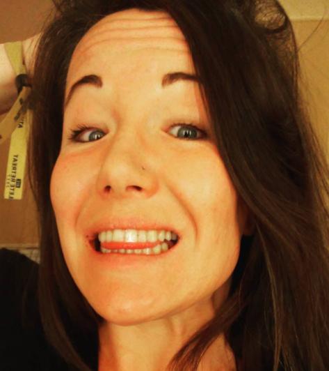 A. Magaña não perdeu dentes (Foto: Reprodução Instagram/A. Magaña)