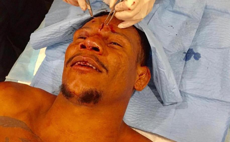 Cowboy sofreu um profundo corte na testa. Foto: Reprodução / Instagram