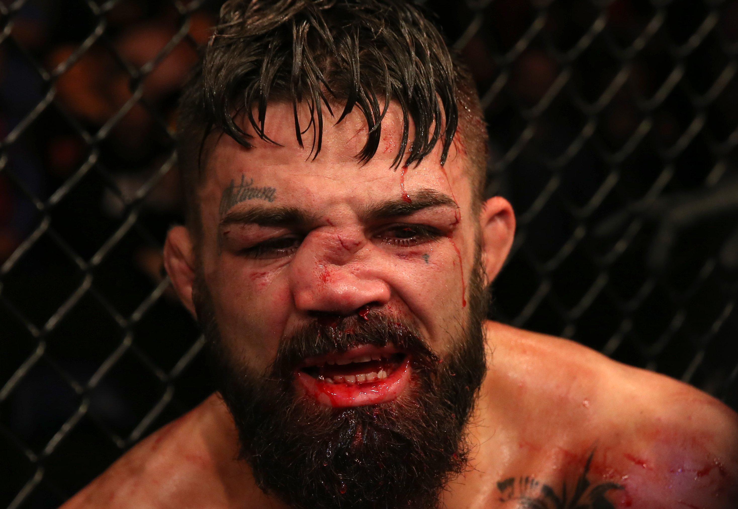 Perry quebrou o nariz em luta contra Luque. Foto: Reprodução / Twitter